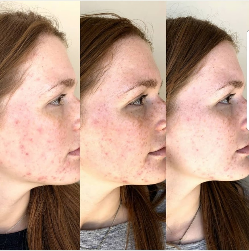 The BEAUTY of a Chemical Peel